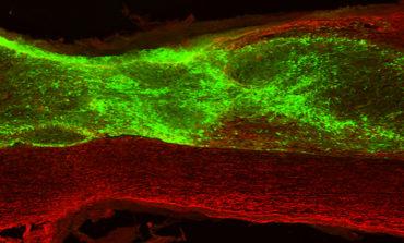 Individuate cellule staminali che riparano lesioni al midollo spinale